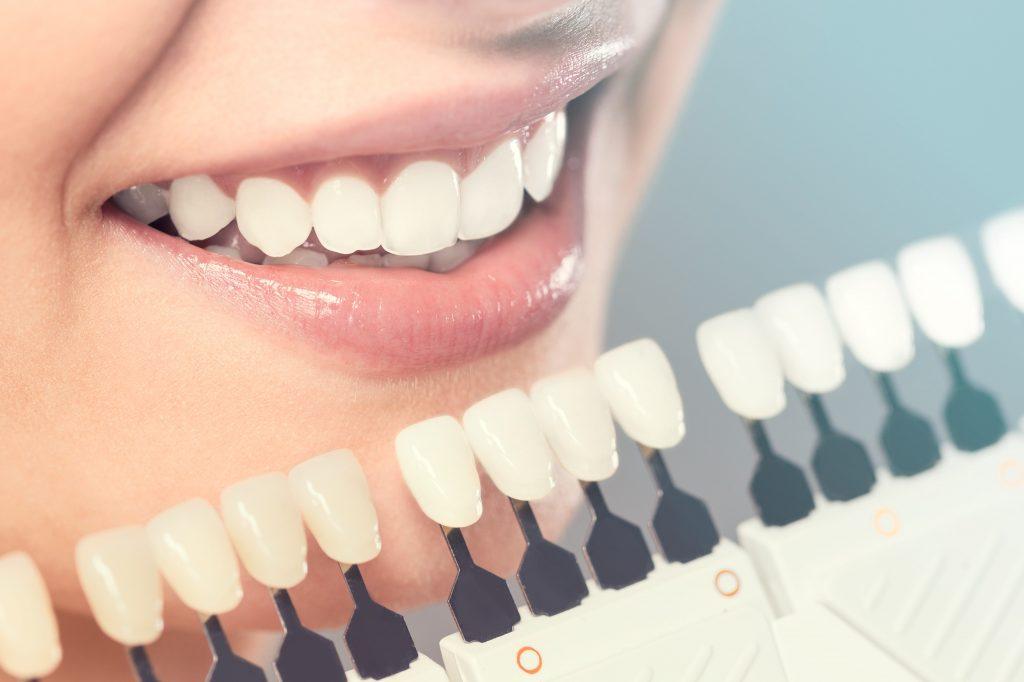 Cosmetic Dentist London